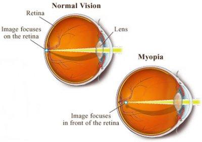miopia a crescut