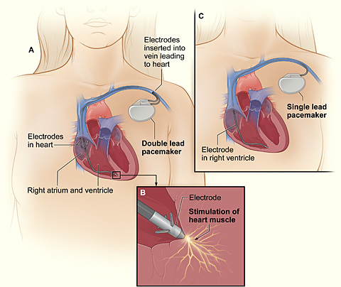 chest with pacemaker