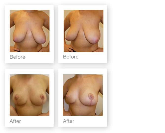 David Oliver Mastopexy Breast uplift surgery before & after May 2017