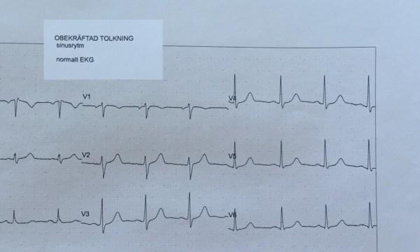normal EKG