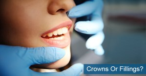 Crowns Or Fillings