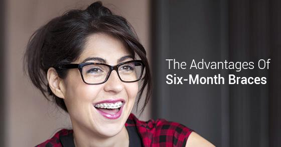 The Advantages Of Six-Month Braces