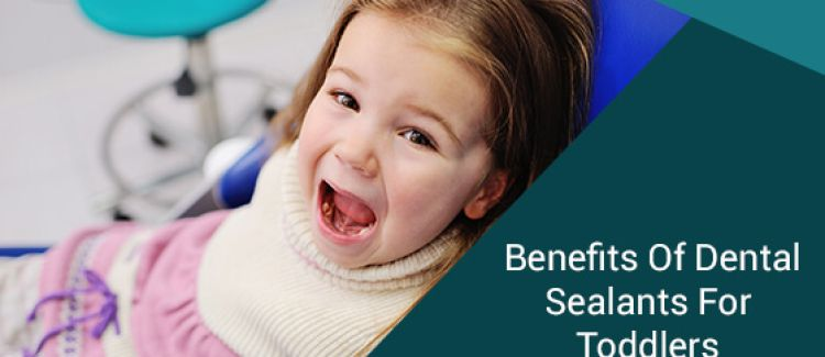 Five Benefits Of Dental Sealants For Toddlers