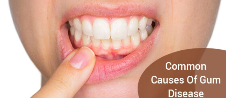 8 Common Causes Of Gum Disease