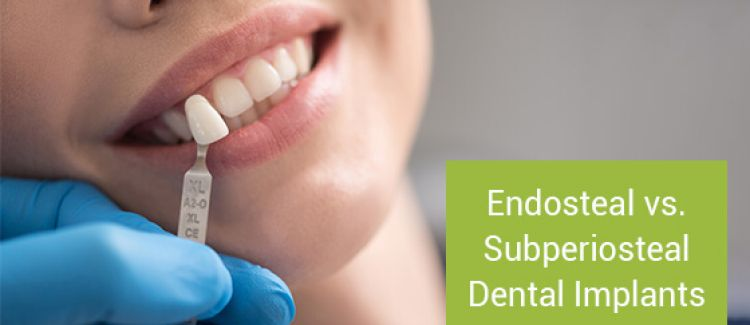 Endosteal vs. Subperiosteal Dental Implants: What's the Best Choice for Me?
