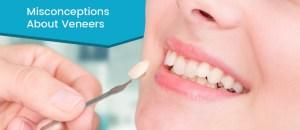 Dentist checks veneer of tooth crown