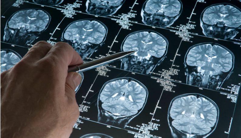 Cientistas descobriram como diagnosticar precocemente o Alzheimer - segredo está no nariz