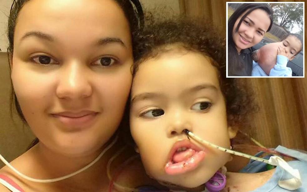 Mãe celebra recuperação de filha que teve tumor raro retirado do rosto: 'Milagre'