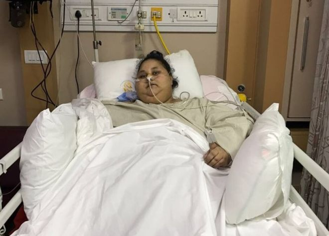 'Mulher mais pesada do mundo' perde 100 kg após cirurgia