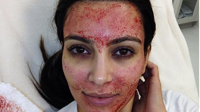 KIm Kardashian undergoes Vampire Facial
