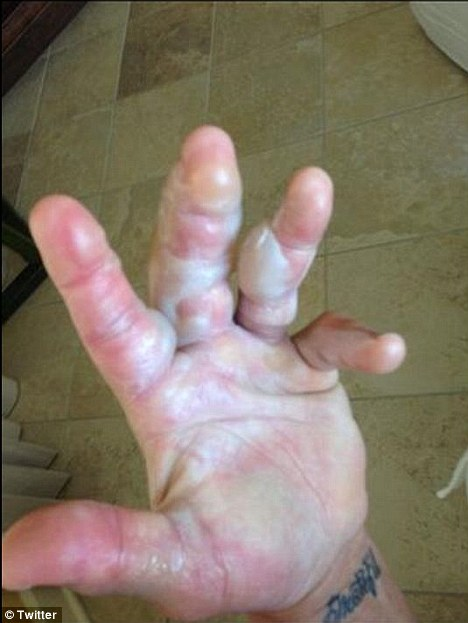 Hulk Hogan burns hand: Ouch! The pro wrestler displayed his wounded digits after a radiator exploded on his hand