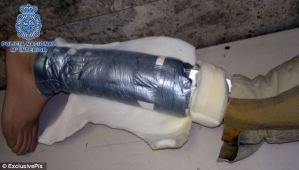 Cocaine Smuggled in False Leg In Spain