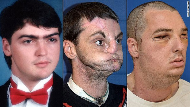Richard Norris Face transplant Surgery Allows Him To Live A Full Life