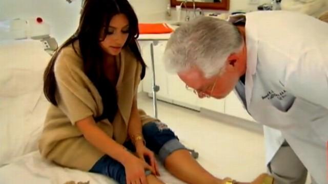 Kim Kardashian Psoriasis Flare Up Or A Hickey? (PHOTO)