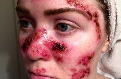 Skin Cancer, Woman Posts Shocking Photo Online