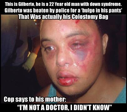 cop beats us down syndrome kid with colostomy bag