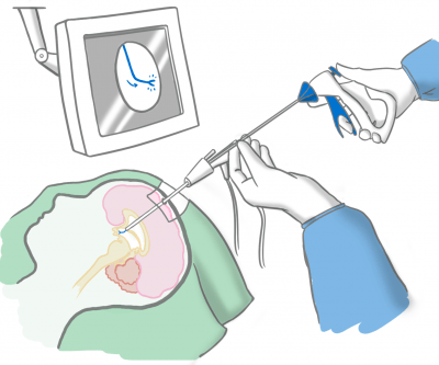 Figure 1: An example of the tilting of the endoscope, in order to reach several areas inside the third ventricle