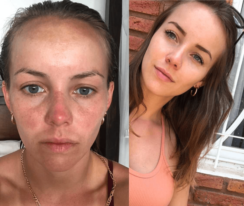 tretinoin before and after for uneven skin tone