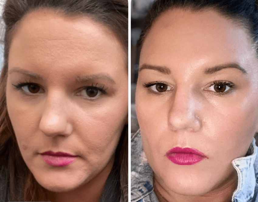 tretinoin before and after for fine lines and wrinkles