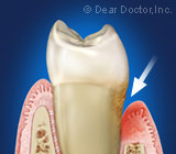 gum disease.