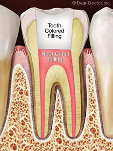 root canal.