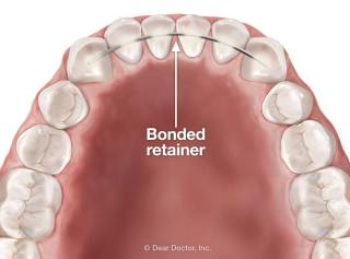 Image result for fixed retainer