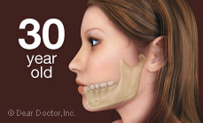Bone loss in 30 year old when teeth are not replaced.
