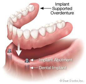 Dental implant supported overdenture.