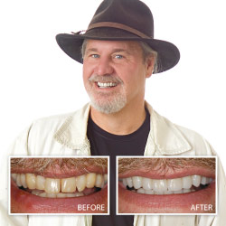 Porcelain Veneers from your Rohnert Park Dentist