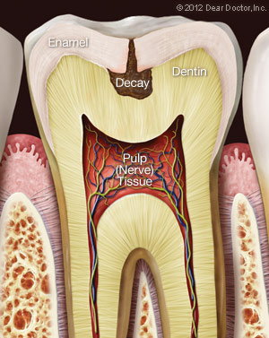 Tooth Decay.
