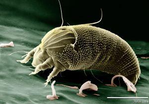 Uma eletromicrografia de um ácaro (Aceria anthocoptes). A barra branca tem 30 µm.