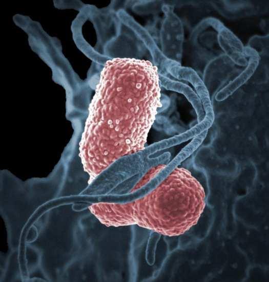 Kiebsiella-pneumoniae