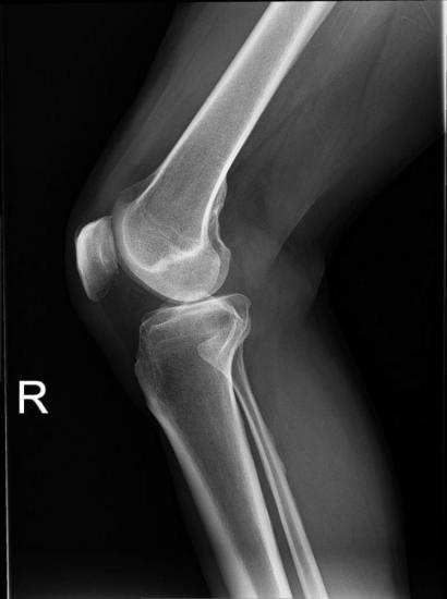 Knee plain X-ray