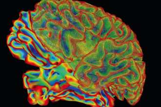 Mulit-color image of whole brain for brain imaging research.