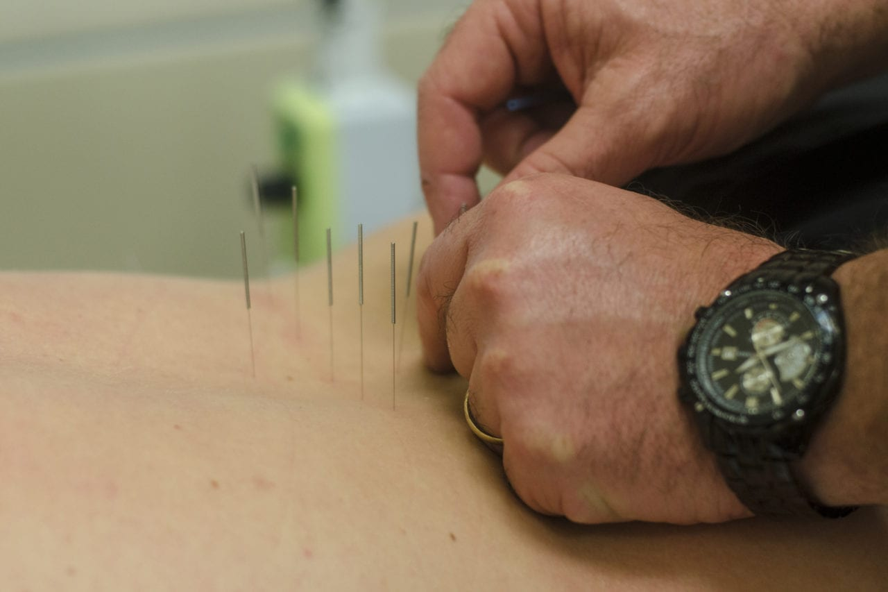 Charles Brill, a physician's assistant at the Fort Campbell Intrepid Spirit Center, uses acupuncture to receive a patient's pain March 20, 2017. The Department of Veterans Affairs is the process of transforming its health care approach to pain management, moving away from reliance on opioid medication to incorporating complementary and integrative health approaches that include, for example, acupuncture, yoga, and cognitive behavioral therapy.