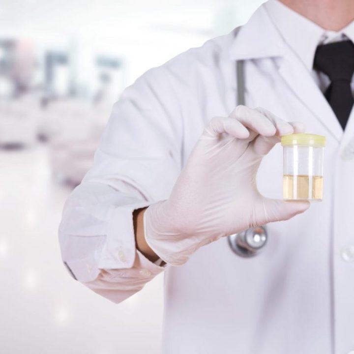 doctor's hand holding a bottle of urine sample in hospital background