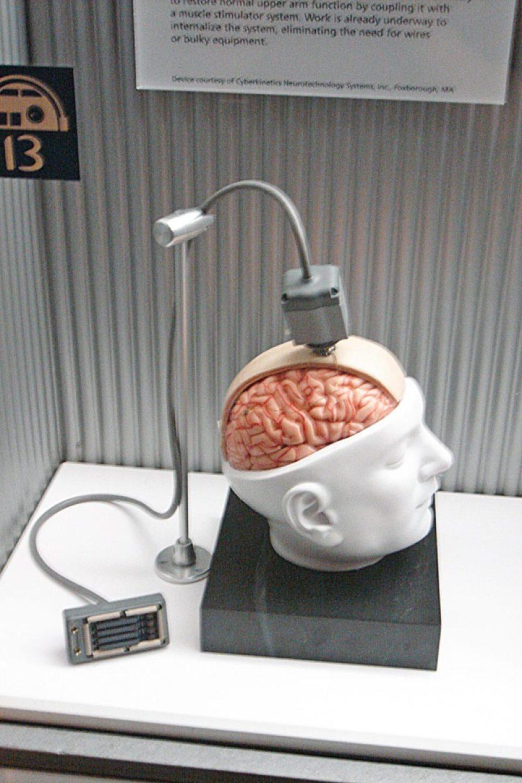 BrainGate Interface computer interface