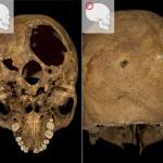 trauma on the skull of Richard III