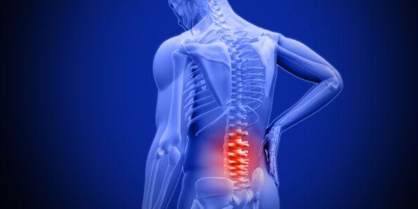 DEL CINE AL HOSPITAL Remedios caseros para el dolor de la espalda baja, ¿qué dice la Medicina?