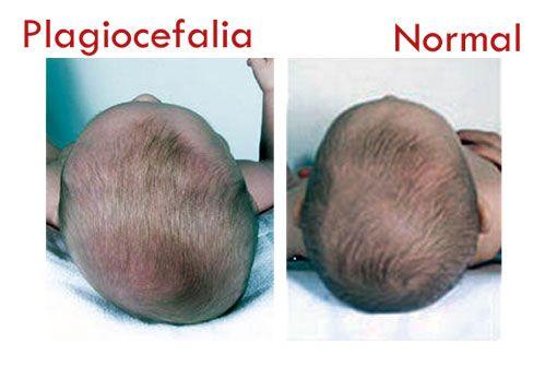 DEL CINE AL HOSPITAL El misterio de los bebés mimados con cráneos deformes: plagiocefalia