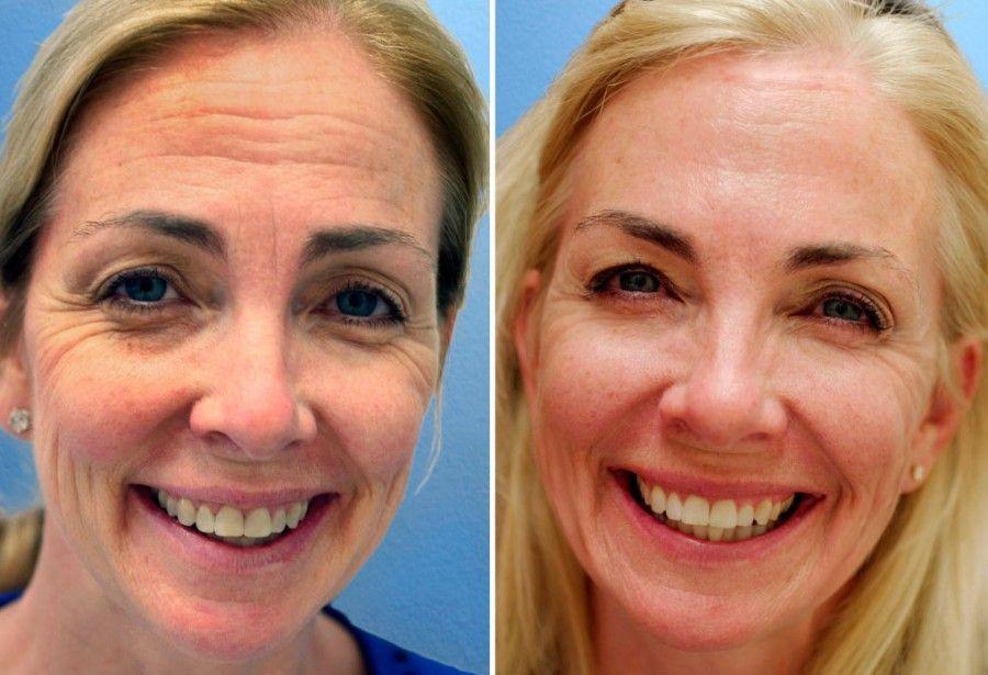 DEL CINE AL HOSPITAL Verano, tiempo de lucirse: ¿ácido hialurónico o botox?
