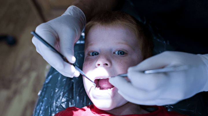 Dental Visits Decoded: What is a Dental Cleaning?