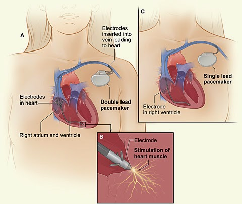 Battery less pacemaker for heart patients