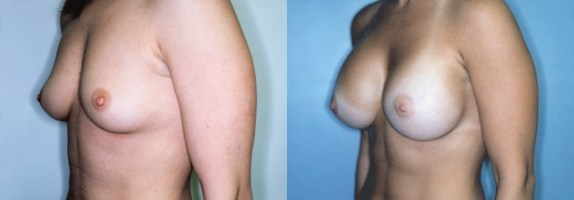 Breast Augmentation with High Profile Implants