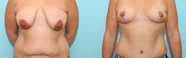 36 year old Mommy Makeover - Breast Lift (Mastopexy) and Tummy Tuck (Abdominoplasty)