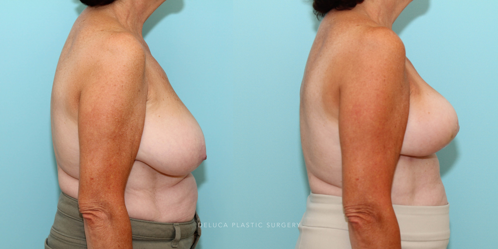 65 year old Superior Pedicle, Wise Pattern Breast Reduction