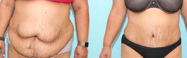 39 year old Tummy Tuck (Abdominoplasty)