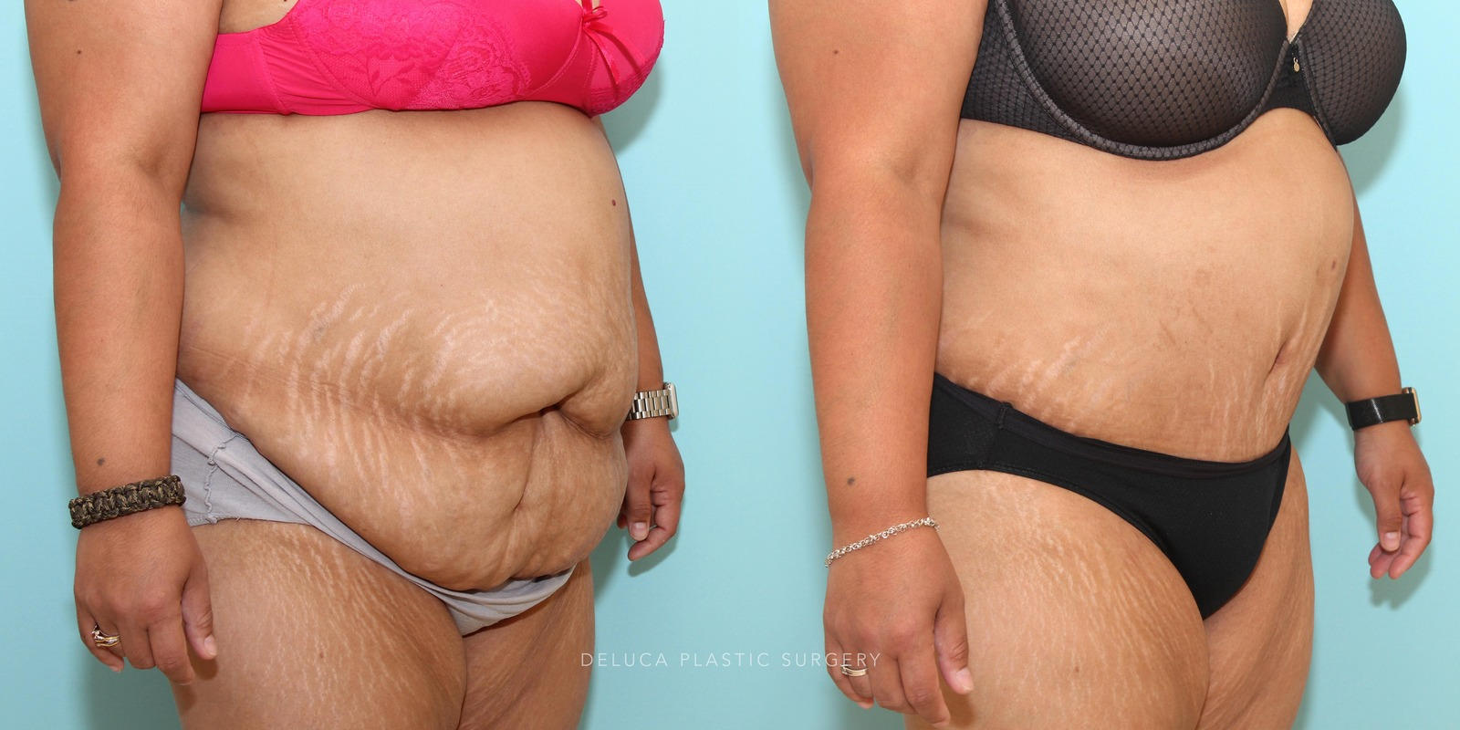 39 year old Tummy Tuck (Abdominoplasty)