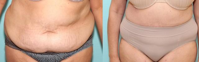56 year old Tummy Tuck (Abdominoplasty)