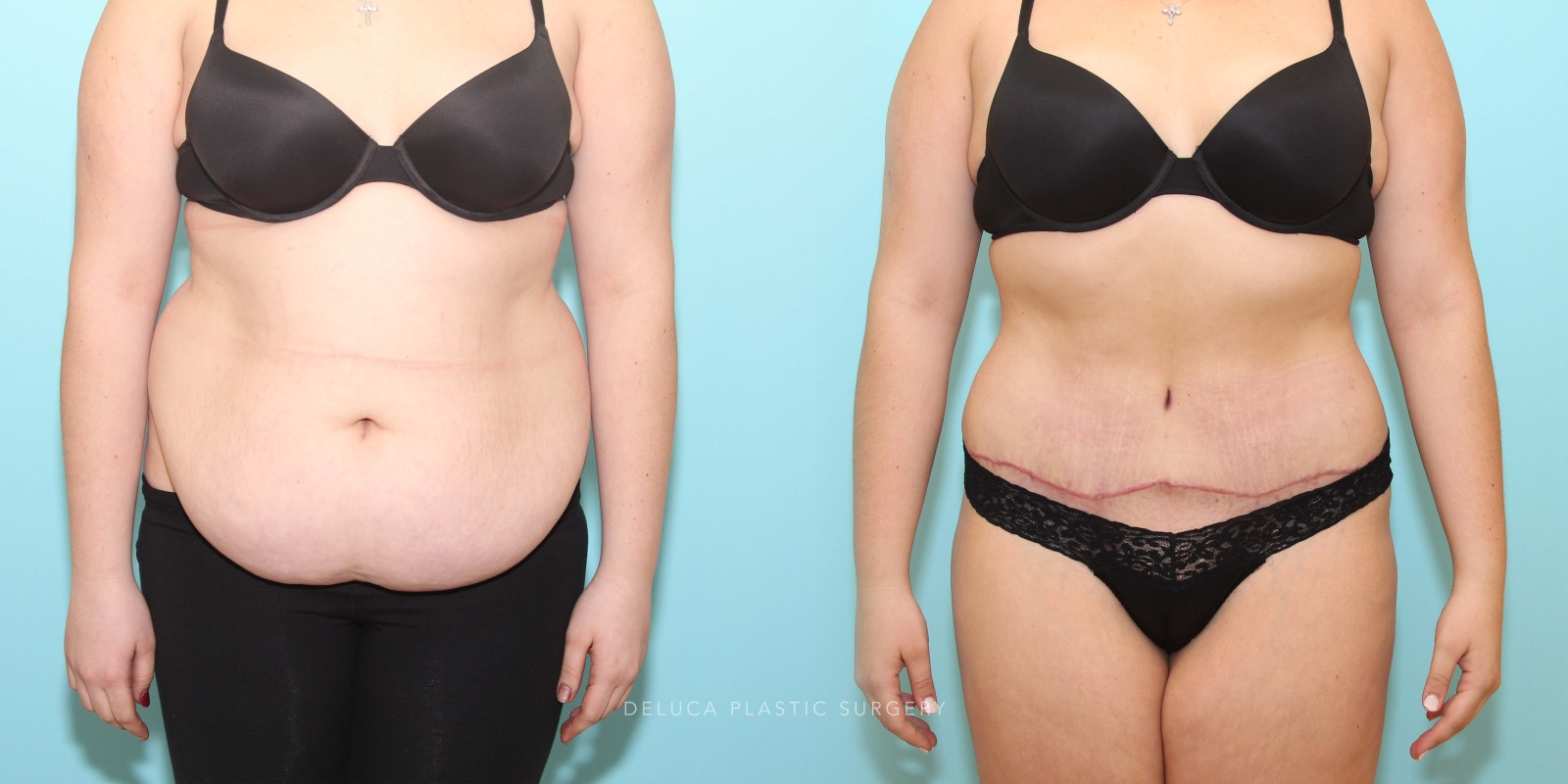 21 year old Tummy Tuck (Abdominoplasty)